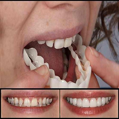 AutumnFall Simulation Teeth Top,1PC Cosmetic Dentistry Snap On Smile  Instant Smile Comfort Fit Flex CosmeticTeeth Comfortable Denture Care 2018  Hot